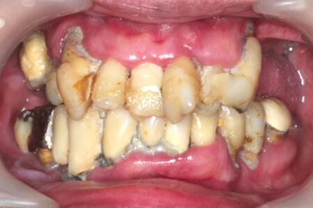腫れ 歯茎 痛い の 歯ぐきが腫れて痛いときの対処法について|吹田市片山町 ゆうき歯科ブログ